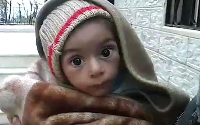 Þetta litla barn er meðal þeirra sem sveltur í Madaya.