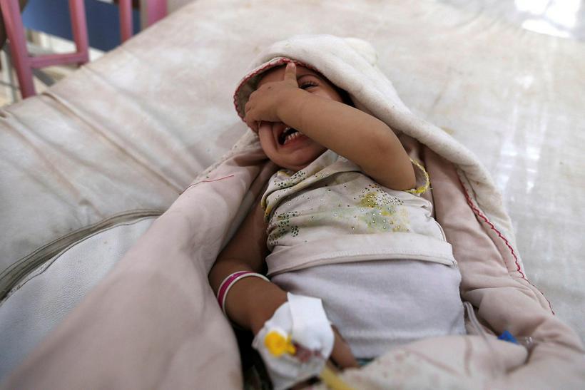 Lítið barn meðhöndlað vegna kóleru í Jemen.
