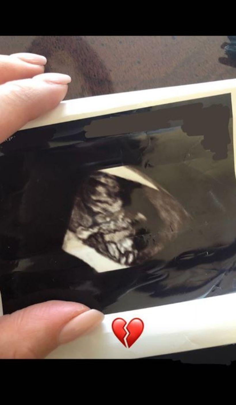 Shay Mitchell birti sónarmynd á Instagram en hún missti fóstur ...