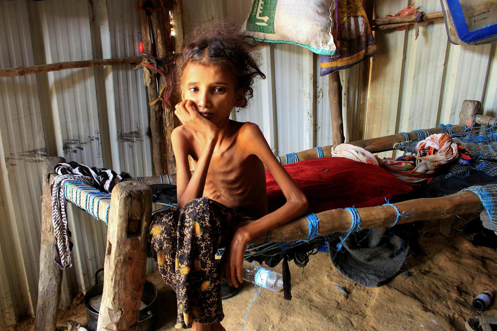 Ahmadia Abdo er 10 ára gömul og býr í Jemen. …