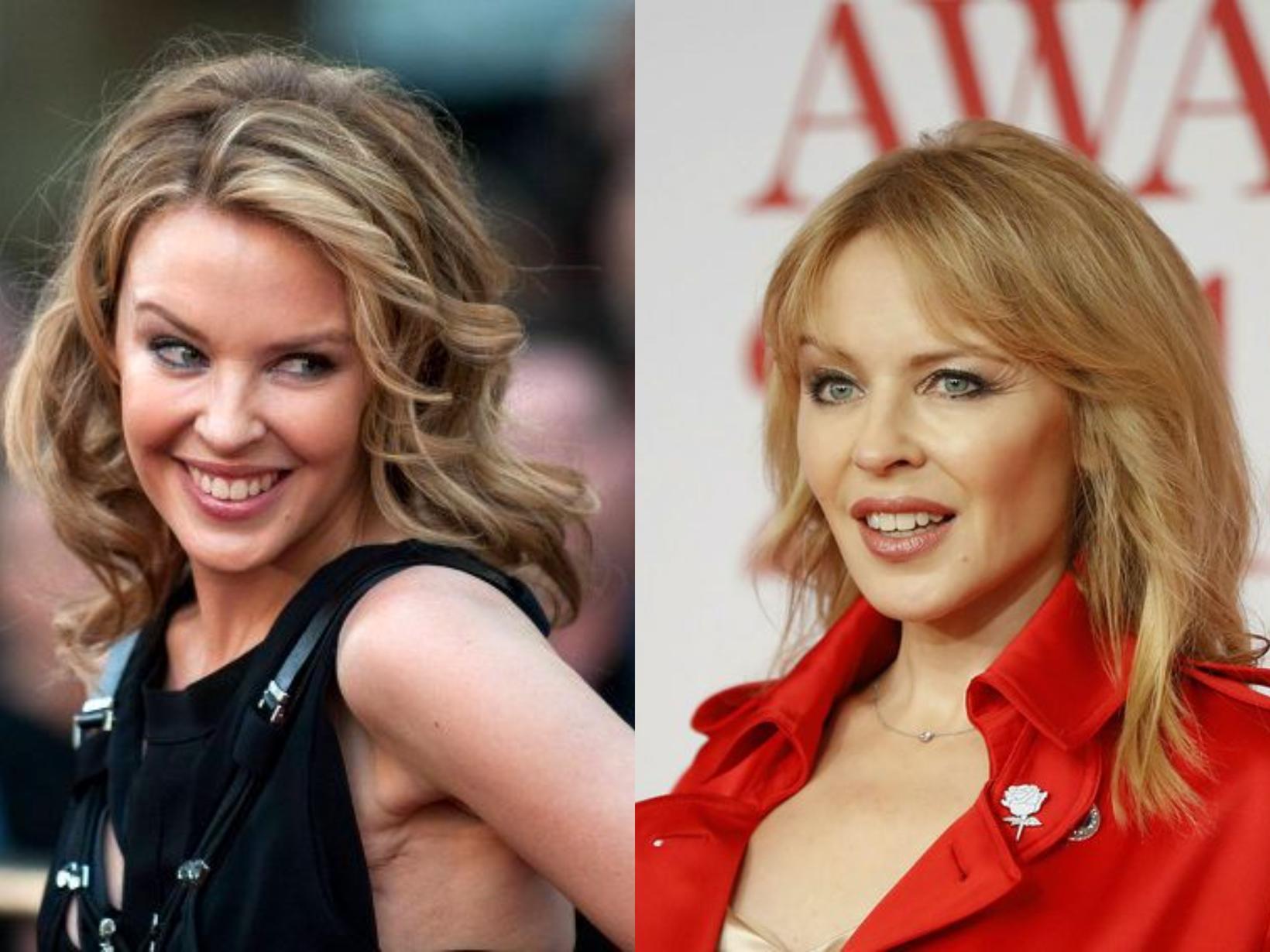 Kylie Minogue með 10 ára millibili.
