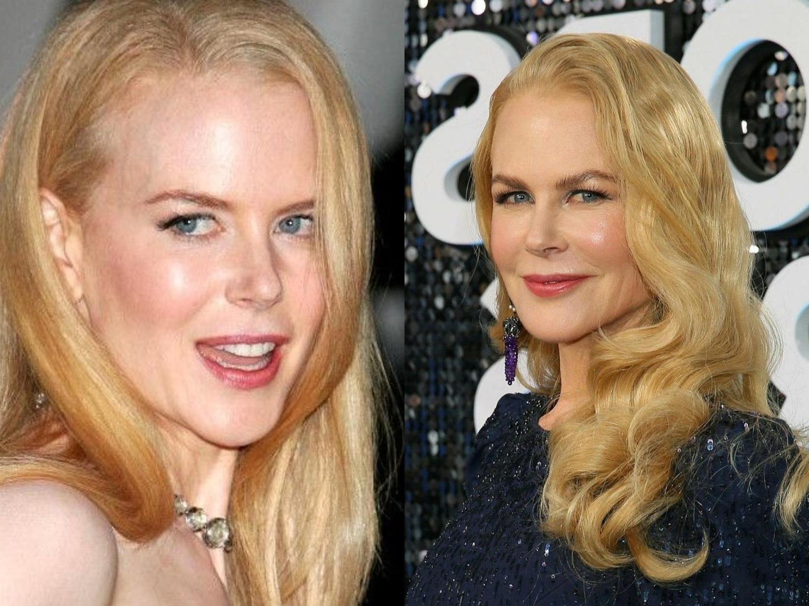 Nicole Kidman með 10 ára millibili.