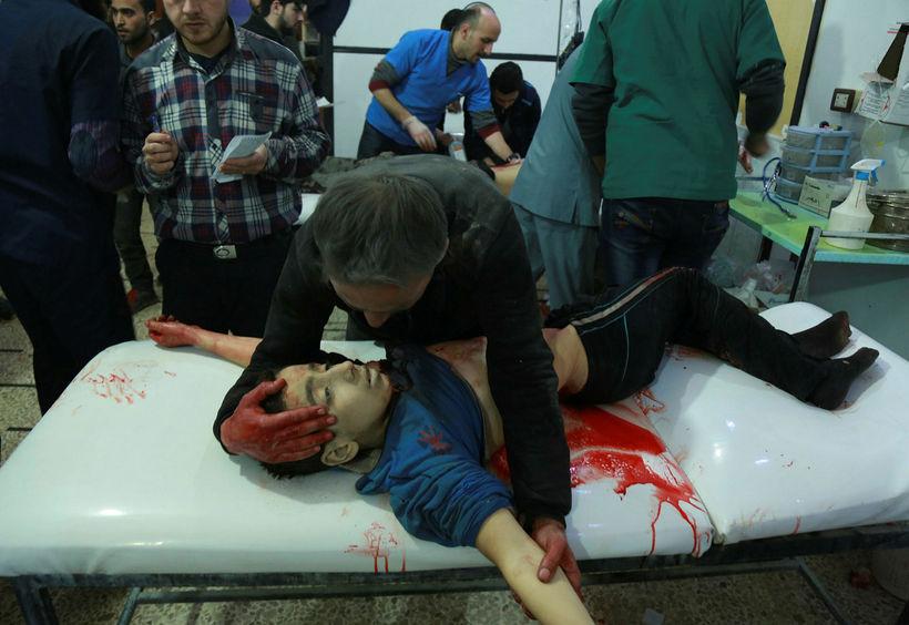 Ástvinur ungs drengs syrgir hann á bráðabirgðasjúkrahúsi í borginni Douma ...