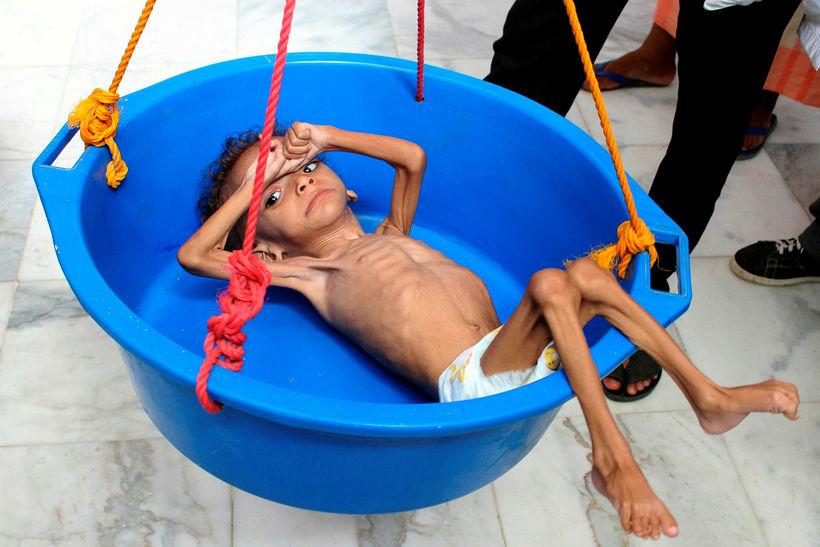 Börn í Jemen eru meðal fórnarlamba ofbeldisverka sem þar eru ...