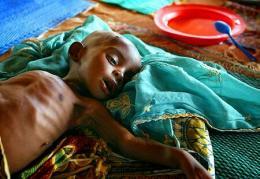 Vannært barn í Níger