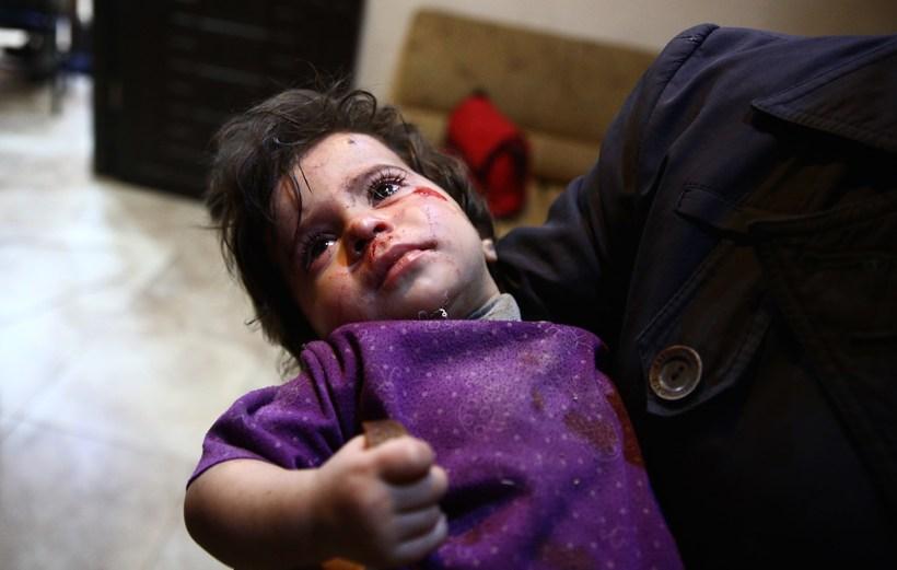 Sýrlenskt barn sem særðist í átökum í heimalandinu.