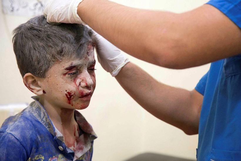 Ungur drengur fær aðhlynningu eftir loftárásirnar í Aleppo.