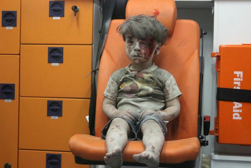 Omran er fimm ára íbúi í Aleppo. Hann er á …
